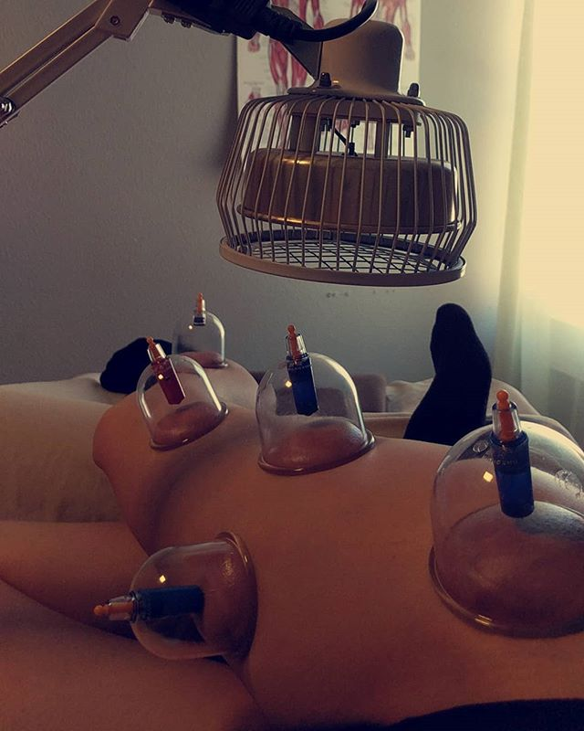 Bye bye sciatica!  #cuppingtherapy works amazing for this!  #denver #acupuncture #highlands
