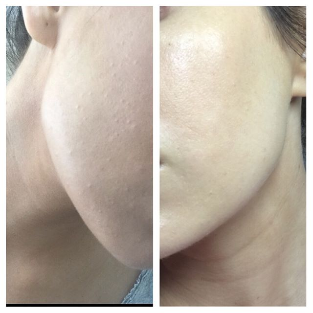 The photo on the left is from her first virtual appointment in September. Her skin was over exfoliated, sensitive, bumpy, clogged and clearly irritated. Just by hearing her skin story, knowing what products she used and seeing her selfies I knew what we had to do to improve the condition. We cut back on exfoliating, cleansing and increased hydration using hyaluronic acid and non clogging moisturizers. We had two more follow up appointments since and finally an in person session to extract some clogged pores very gently. The photo on the right is from this week. I feel proud to say she is very happy and in love with her skin. Due to the high volume of clients needing similar virtual help, I have now added it as a service to my website. I can help anyone, anywhere just by hearing your skin story and seeing a selfie of the problem area. Visit www.thelittleowlspa.com to book your virtual appt with me.  #skincare #skinhealth #kikimyskinis #hudsonvalley #myskinis #poughkeepsie #virtualappointments #clearskin #healthyskin #skingoals #skincarehelp #skinwise #skincareroutine #skincarebykiki