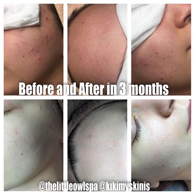Keeping your regimen simple helps the skin do what it's meant to do. We don't need to interfere so much! This client was using too many irritating ingredients including makeup that contained citrus oils 😩 I didn't recommend too many facials or peels, just better home care #myskinis #thelittleowlspa #skincarebykiki #skincare #skincareadvice #hudsonvalley #poughkeepsie #clearacne #skin #skincareroutine