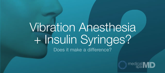 Vibration Anesthesia