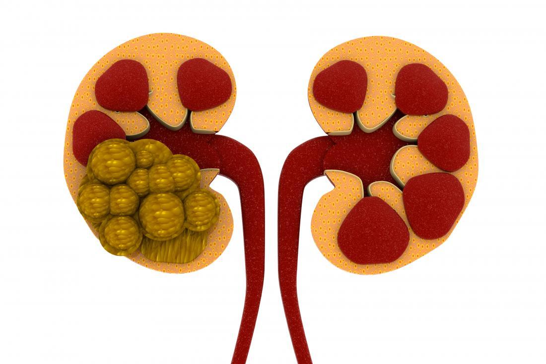 Kidney Stone Image.jpg
