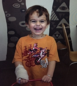 Leo 3 days after kidney removal