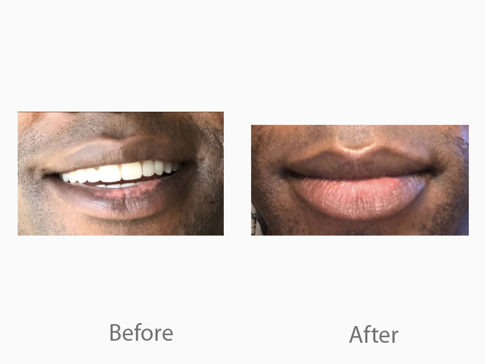Hyperpigmentation on  lips.jpg