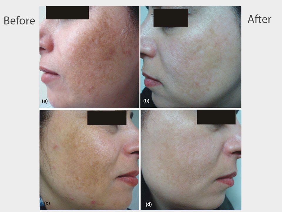 Melasma on face.jpg
