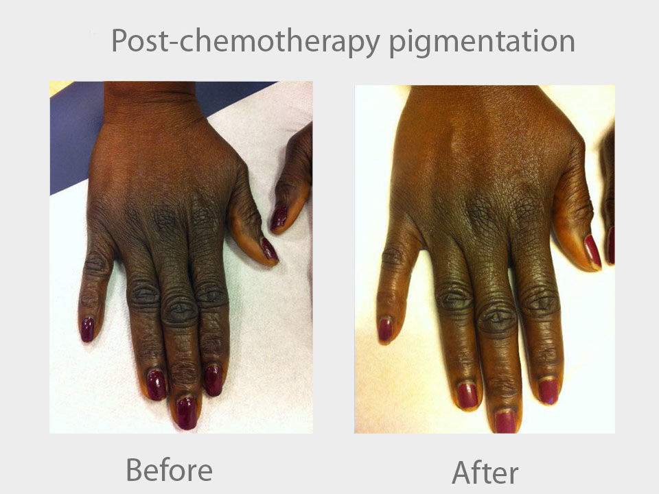 post chemotherapy pigmentation.jpg