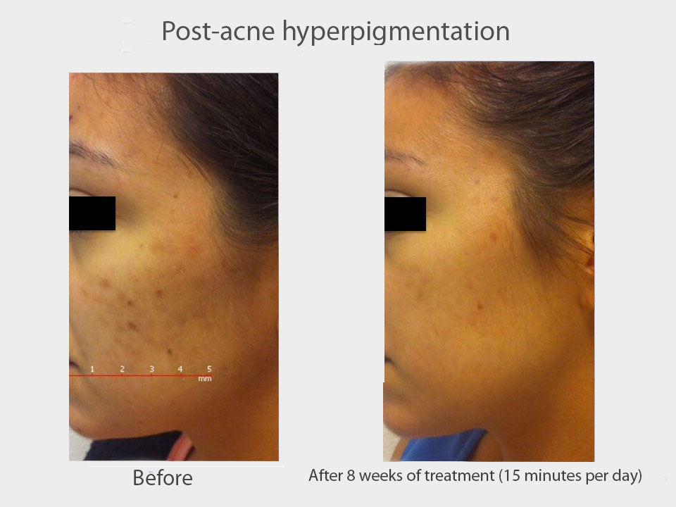 post acne hyperpigmentation ( Croped).jpg