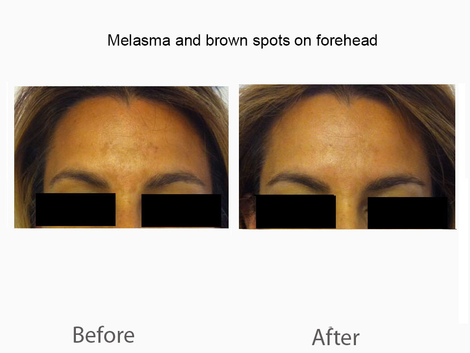 Melasma on face and forehead croped.jpg
