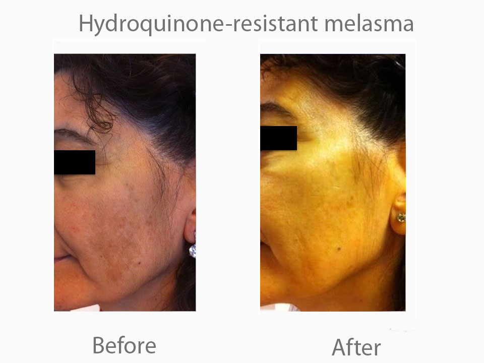 Hydroquinone resistant melsama croped.jpg