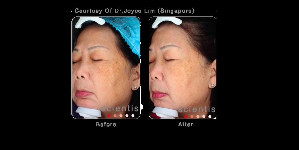 Joyce Lim 2 .png