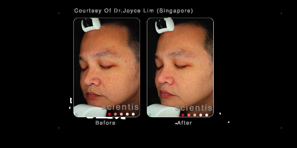 Joyce Lim 3 .png