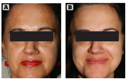 Figure 2 (A) Prior to  treatment and (B) After 4  weeks of treatment