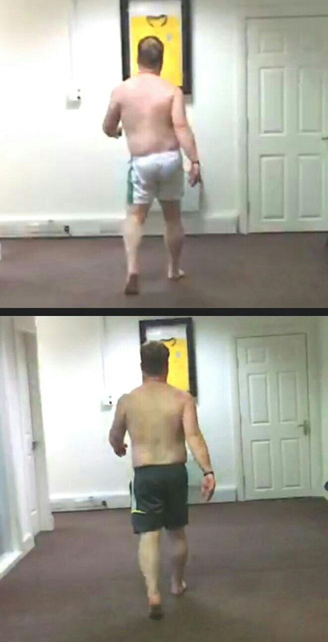 Phase 2. Left Propulsion (toe off) and Right Suspension (foot Pronation) - Coupled movement  Before / After