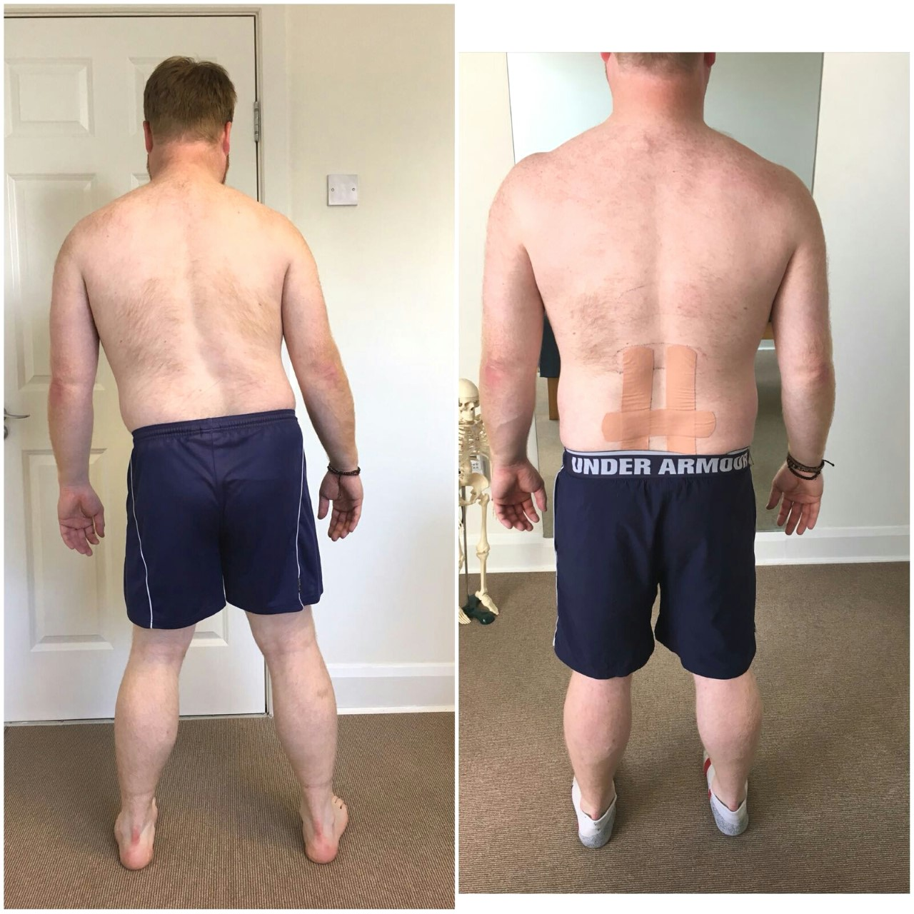 Low Back (Disc Herniation) + Scoliosis -