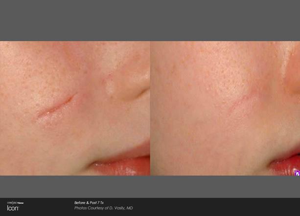 icon-d-vasily-surgicalscar-cheekpost7tx.jpg