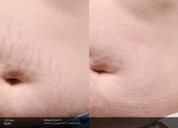 icon-s-doherty-stretchmark2-stomach.jpg