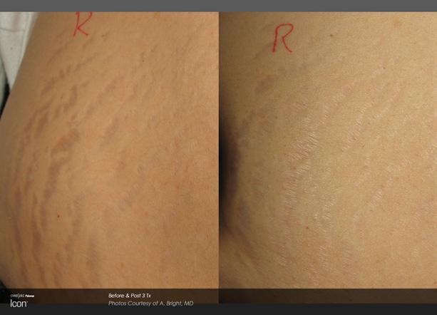 icon-a-bright-stretchmark-side-post3tx.jpg
