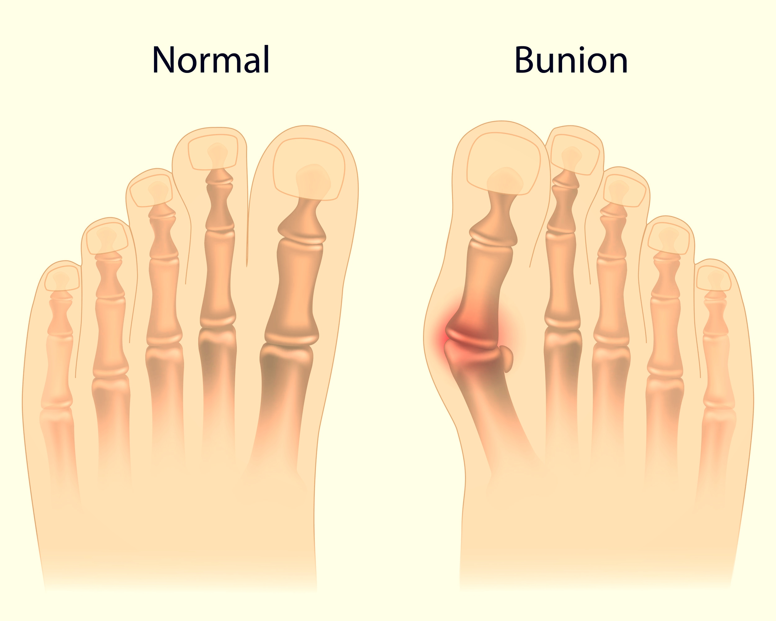 bunions treatment greenburgh white plains podiatrist