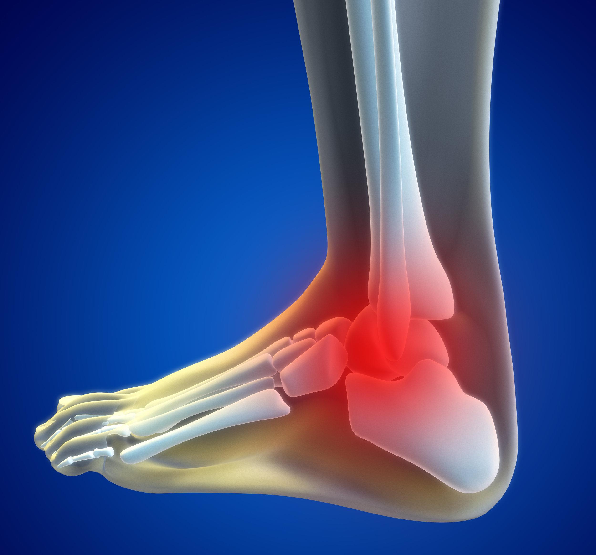 zara hercules ankle doctor
