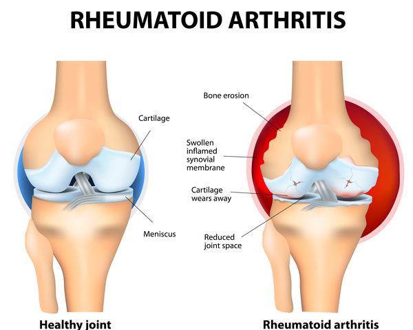 rheumatoid-arthritis-600x480.jpeg