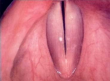 Normal larynx