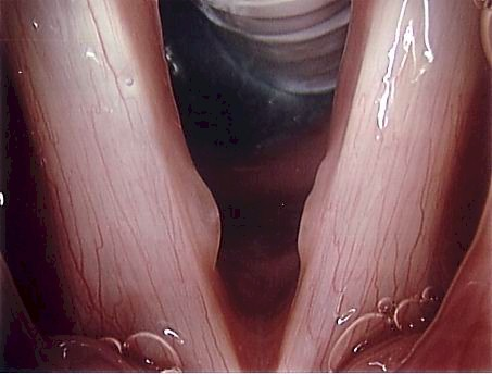 Right vocal fold cyst and left reactive nodule