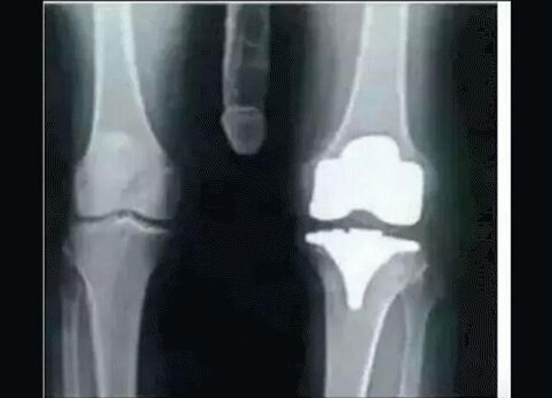 I think I may need surgery .