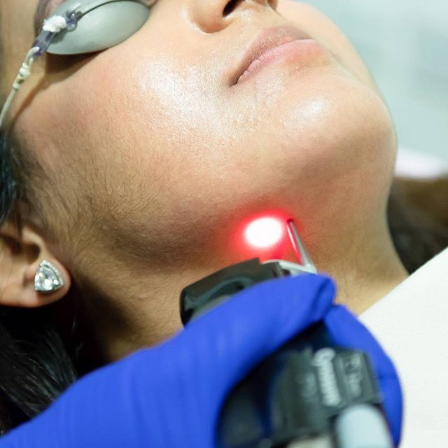 Laser hair removal is safe and effective anywhere you have unwanted hair that's dark enough to focus the laser – even in sensitive areas. #skincare #balham . . . . . . #radiancesclc #wellness #skin #summerglow #health #beauty #healthyliving #botox #fillers #bloggers #confidence #austhentics #austhentic #microneedling #microdermabrasion #nosejob #lipfillers #london #lasertreatment