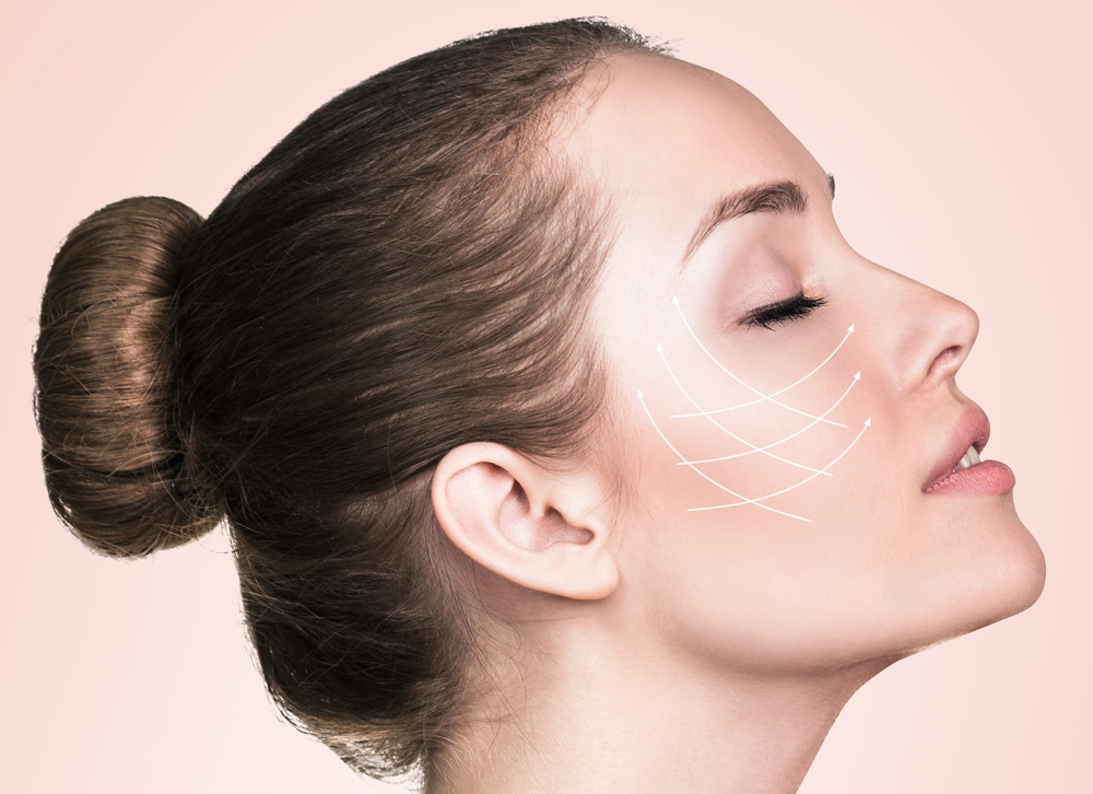 radiance skincare and laser clinic - 3d face lift.jpg