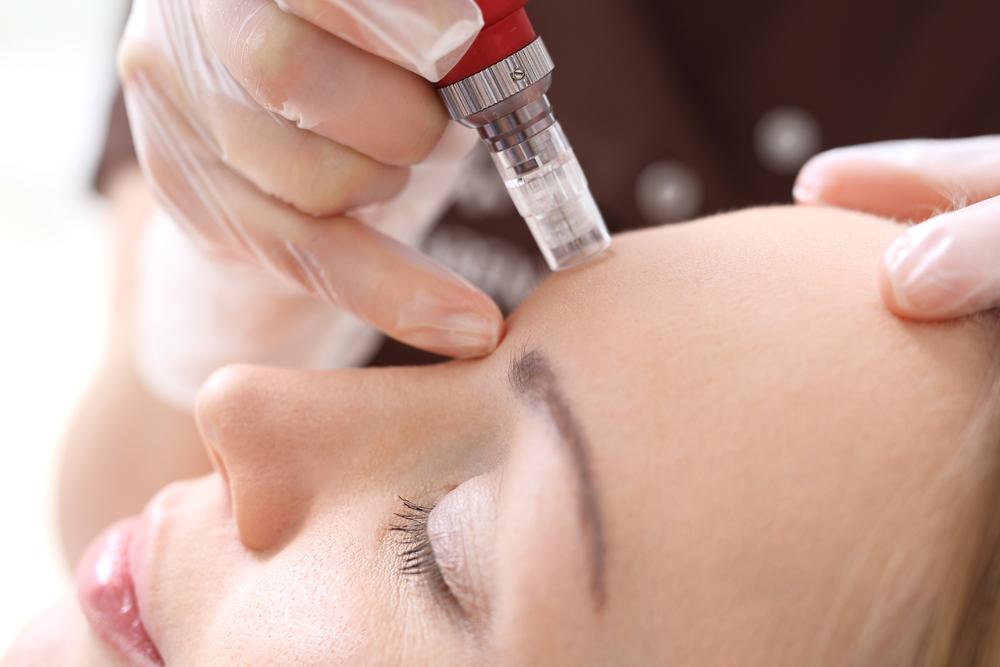radiance skincare and laser clinic - rejuvapen.jpg