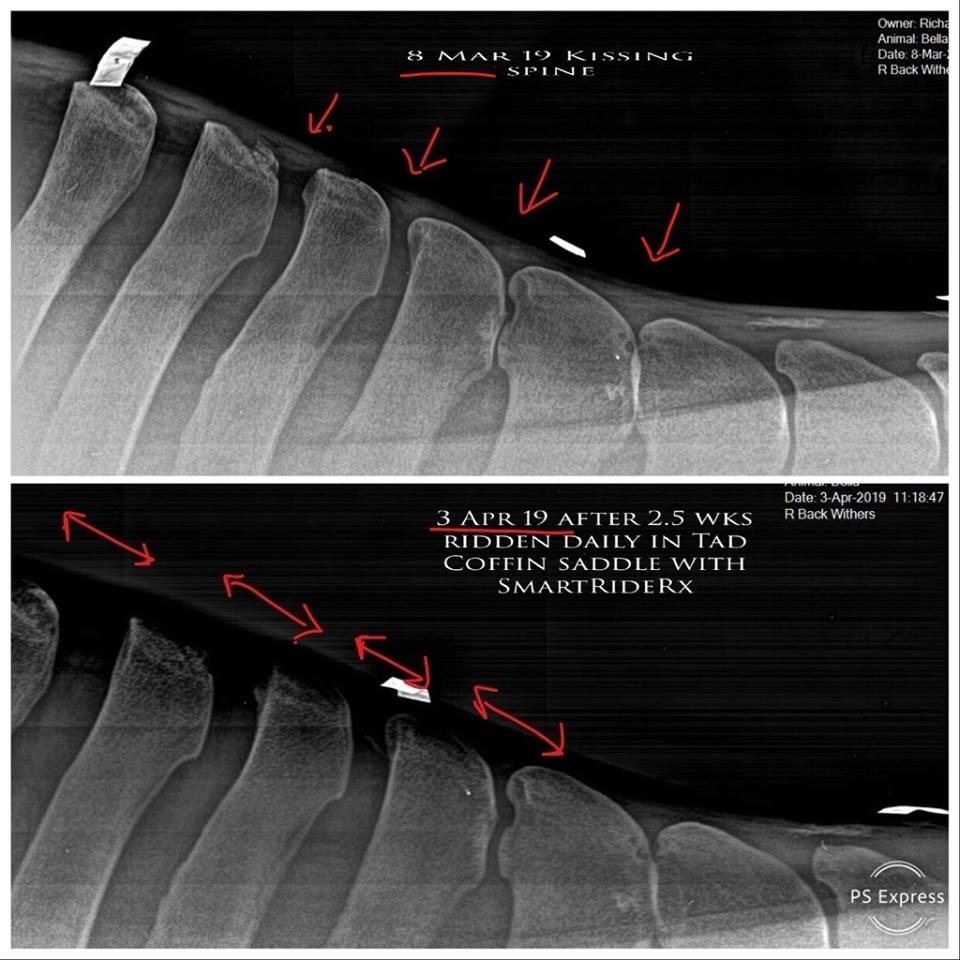 Xray Comparison.jpg