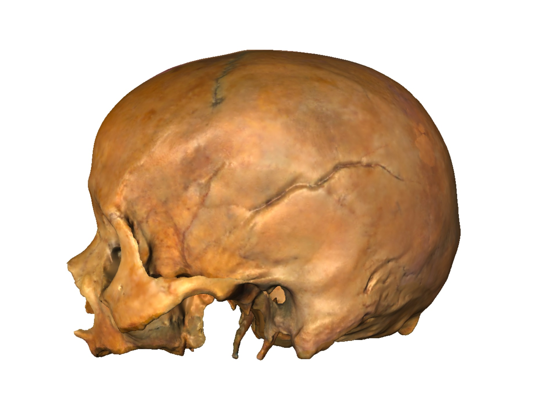 3D laser scan of an adult human cranium in left lateral view.