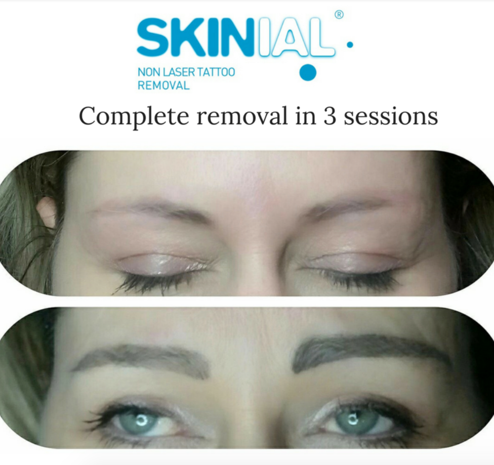 Non Laser Permanent Makeup Removal