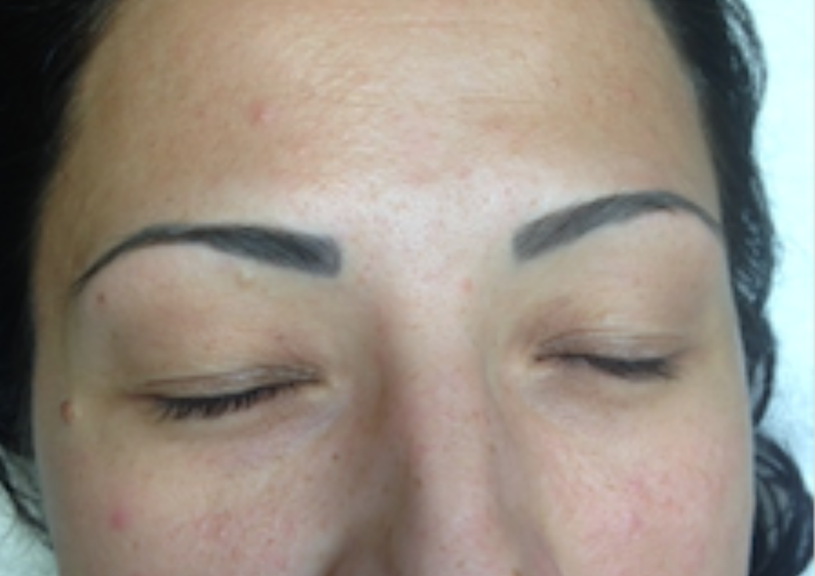 BEFORE - Permanent Make Up Removal