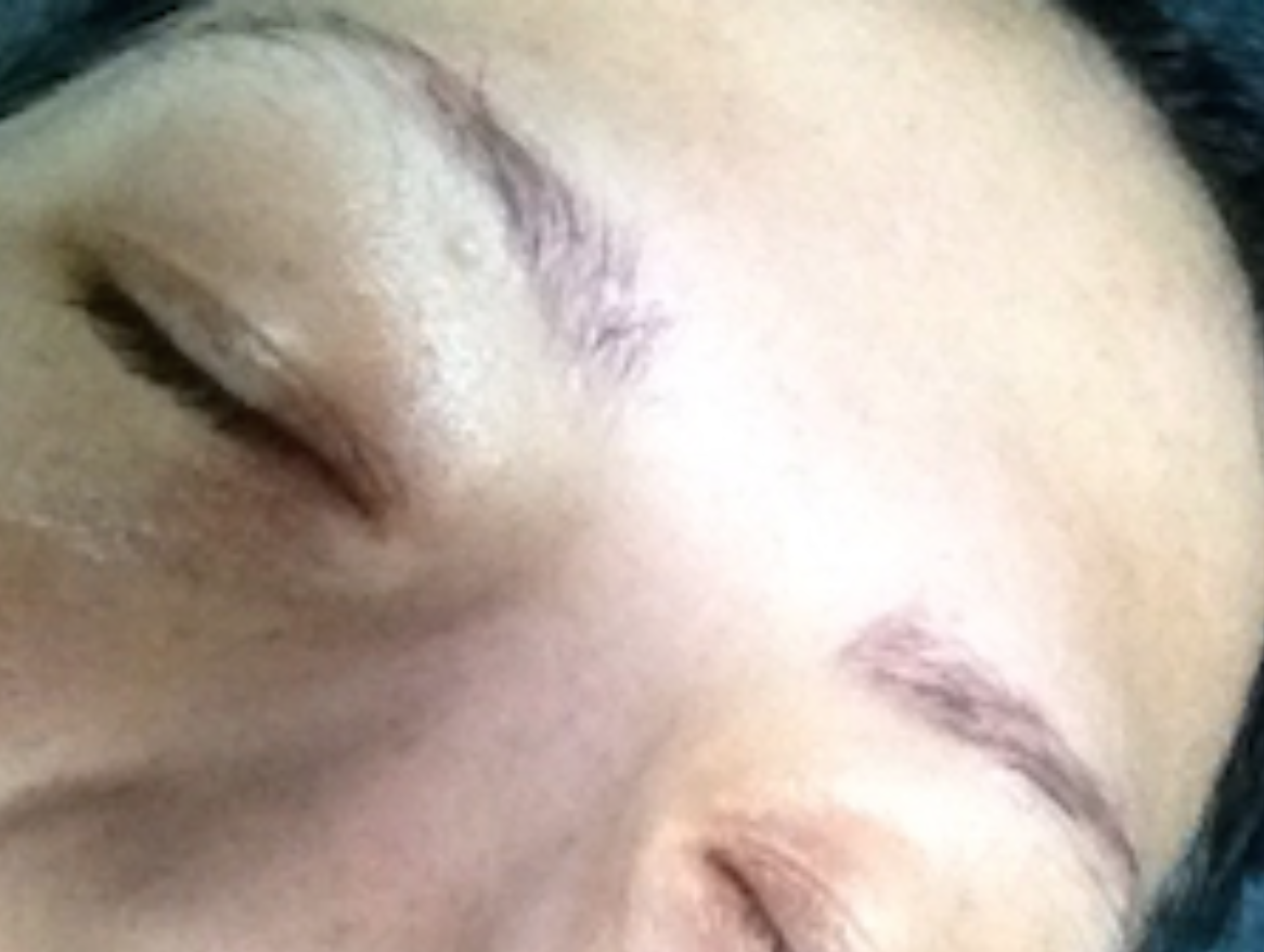 AFTER - Permanent Make Up Removal