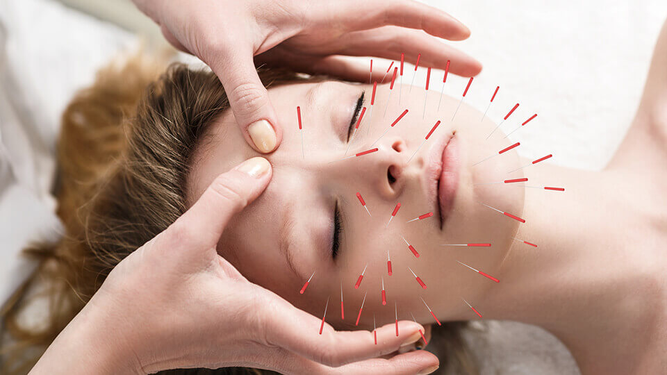 Can-acupuncture-mend-a-broken-heart