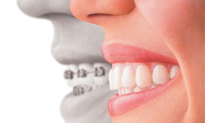 Dental World Kapolei provides Invisalign treatment for crooked teeth.