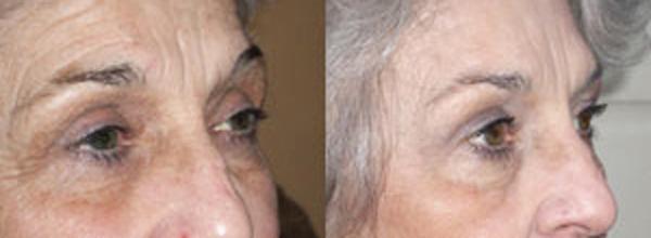 Skin Stem CElls 2.jpeg