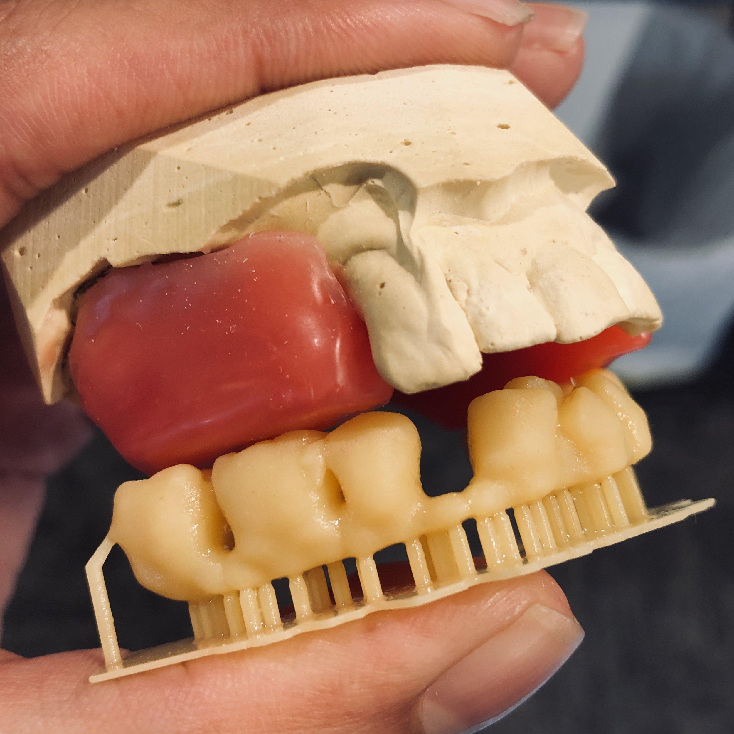 dental.3dprint.nabeel.cajee.dds.JPG