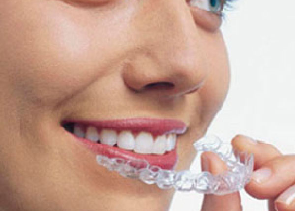 Orthodontics & CLEAR ALIGNERS -