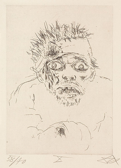 Wounded Soldier Fleeing the Battlefield (1916) by Otto Dix (c) 2016 Artists Rights Society (ARS), New York / VG Bild-Kunst, Bonn