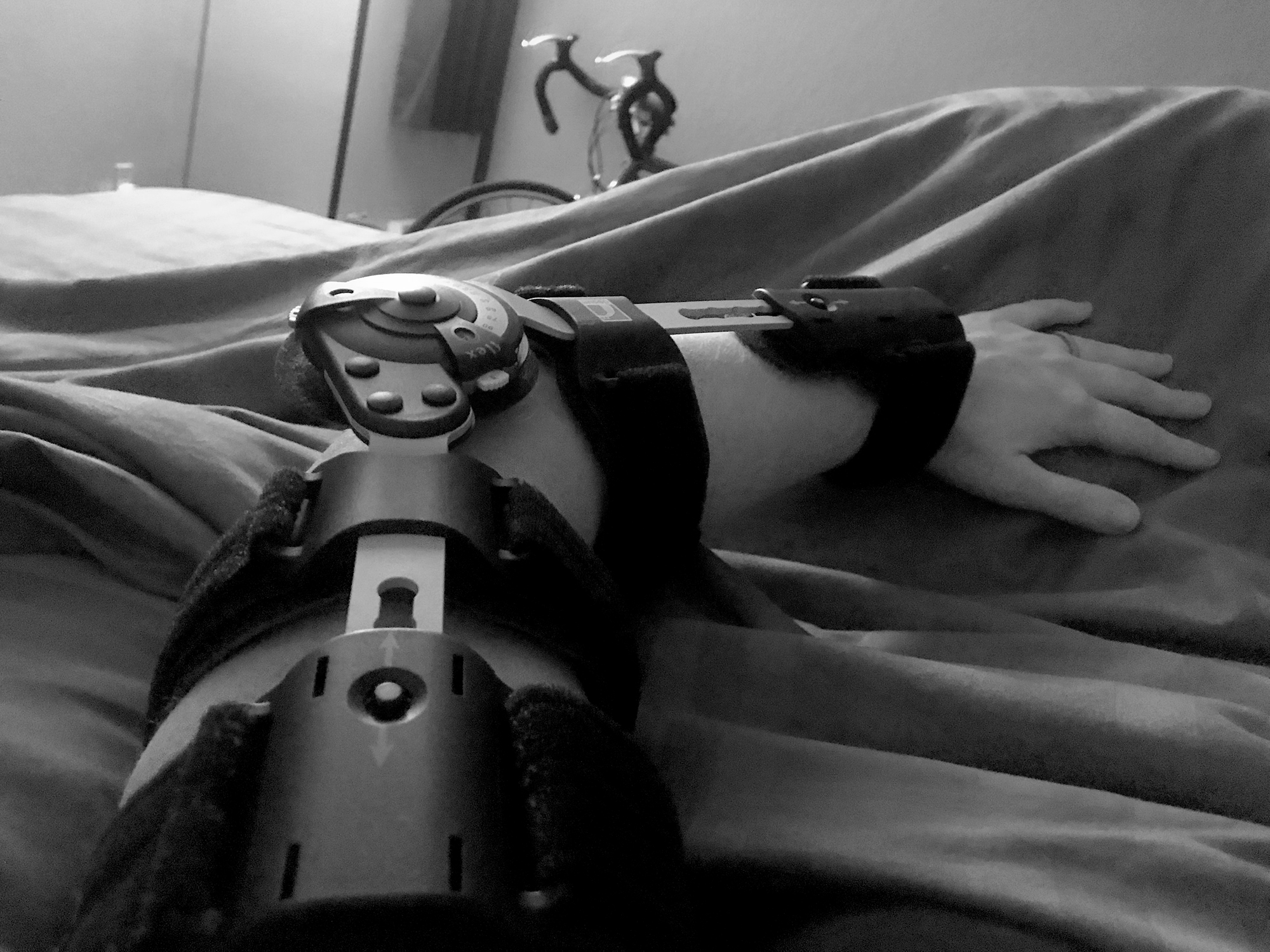 The night I got my brace I was still woozily exhausted from painkillers and incredibly bruised. While I'm in a much better place now, it's going to be a while before I can ride the bike in the background here.