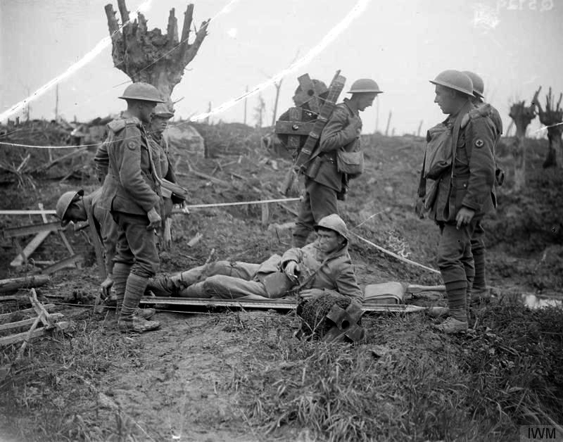 Photograph showing a wounded French soldier being brought back by stretcher-bearers. Passing them, the infantryman going to the front line is carrying two reels of barbed wire on a Yukon pack.