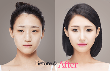 Image from a South Korean plastic surgeon's website