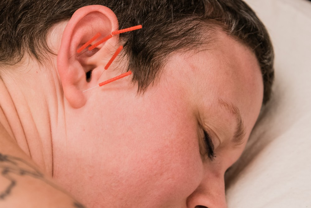 Lafayette Sports orthopedic Acupuncture, Auriculotherapy, ear acupuncture