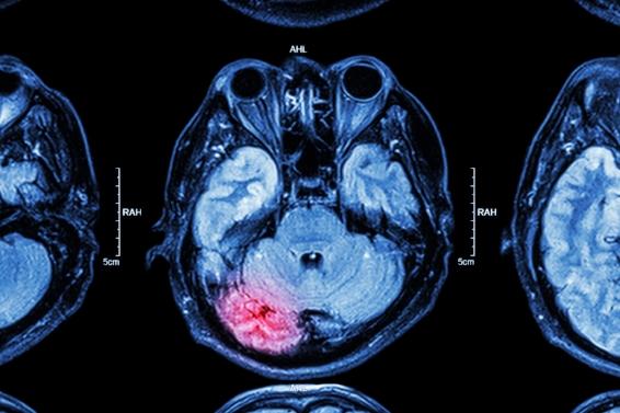 Personal Injury | Brain Injury |