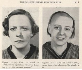 Schizophrenic woman before and after lobotomy.