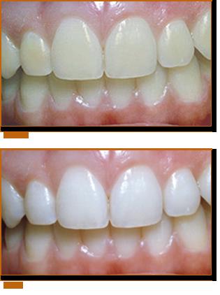vertical-teeth-whitening.png