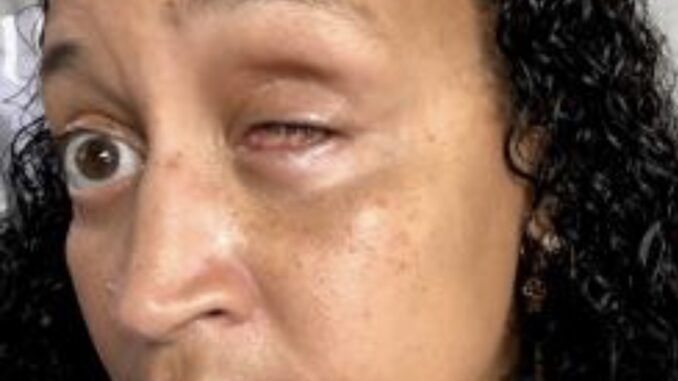 Pictured: Johanna Pagan-Alomar lost her left eye during what she says was an unprovoked attack by an NYPD Officer on June 7, 2018, in the Bronx. Credit: Facebook