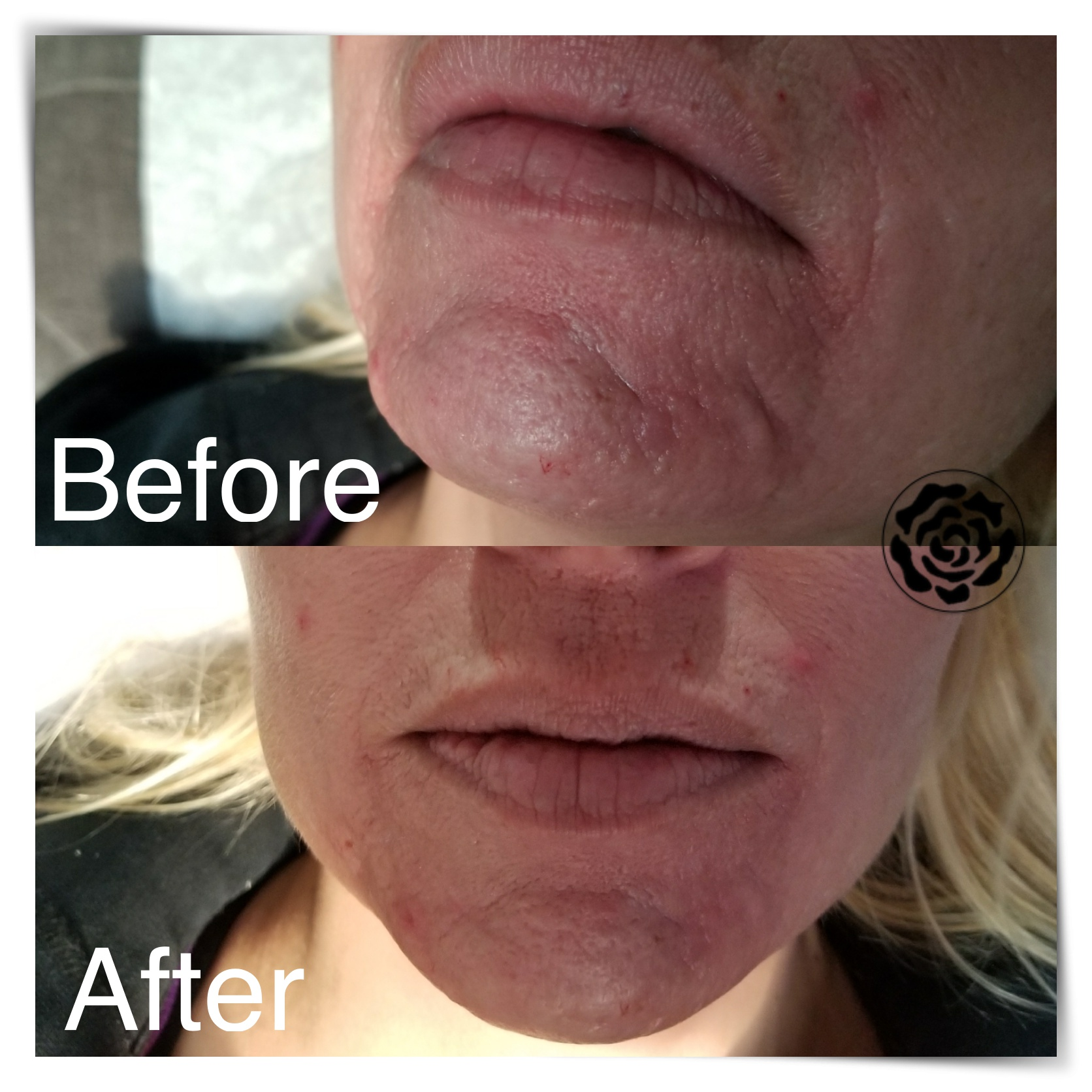 WHAT: Dermal Filler    WHERE: Chin/Fine lines    WHEN: Immediate effects, lasts 9 months +    HOW: Injected by experienced practitioner, no down-time    WHY: For a rehydrated and refreshed/youthful appearance as well as a more defined facial structure