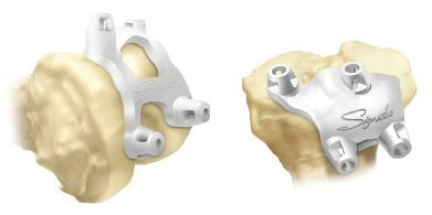 Personalised positioning guides for total knee replacement